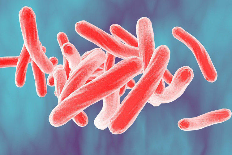 Tuberculosis: Causes of Disease and Routes of Infection
