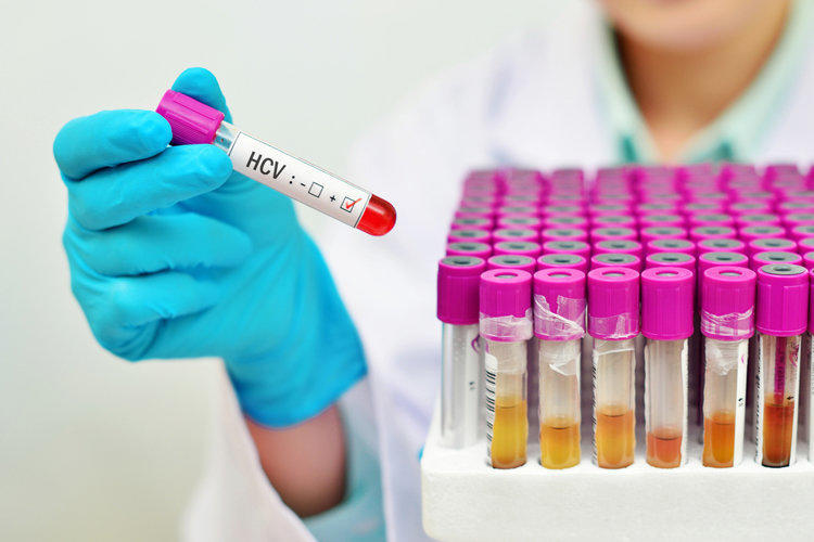 Hepatitis C viruses - what are they and how they kill the liver