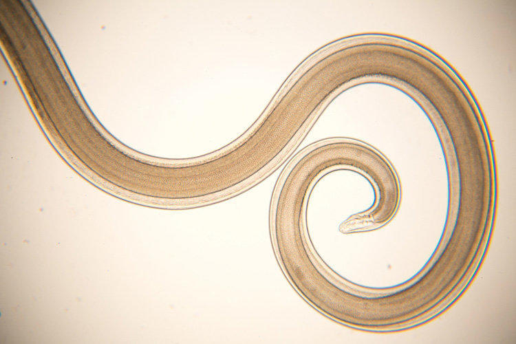 What does a roundworm look like?
