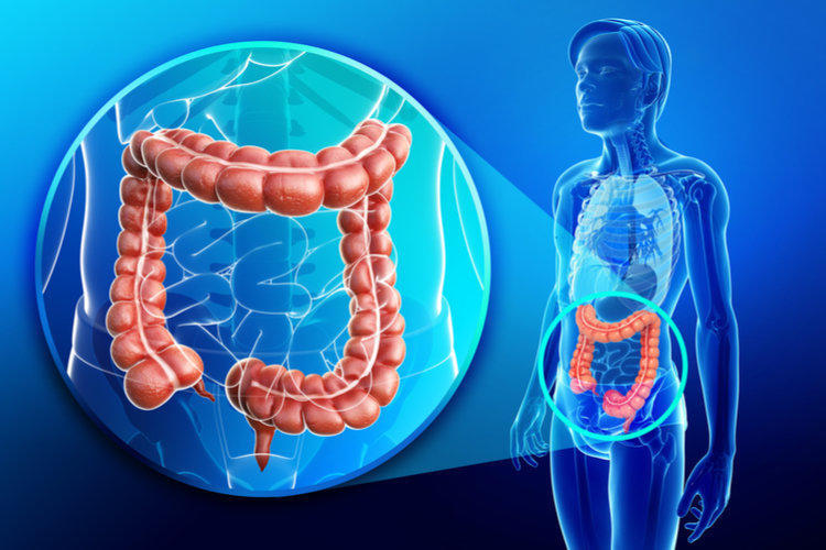 Colon Inflammation: Symptoms and Treatment of Colitis