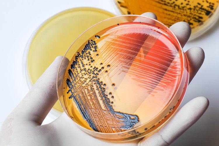 Salmonellosis: symptoms in adults, treatment, signs, how to treat