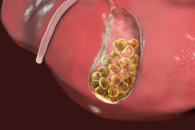 Gallstones: symptoms and treatment