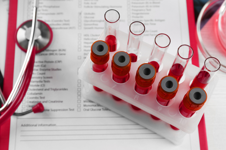What indicators of a general blood test indicate oncology