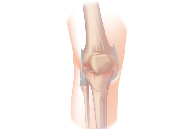 Experimental drug prevented cartilage loss in osteoarthritis